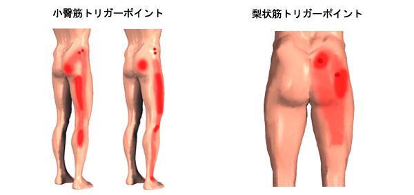 腰痛セルフチェックシート(腰痛...