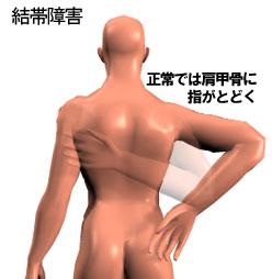 五十肩:結帯障害