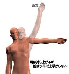 五十肩:腕が挙がらない状態